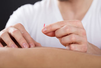 Close-up Of A Person Getting An Acupuncture Treatment At Physical Therapy Clinic